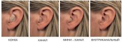 Слуховые аппараты внутриушные