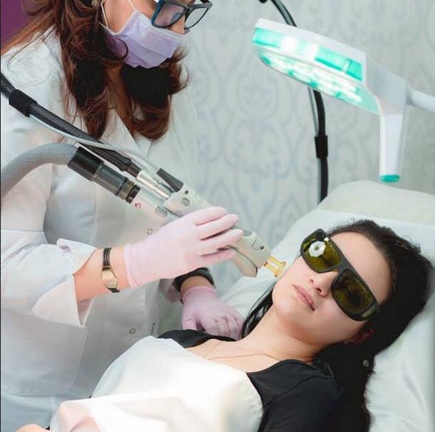 Лазерный аппарат для эпиляции кандела