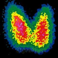 La glándula tiroides, el buche, el tratamien