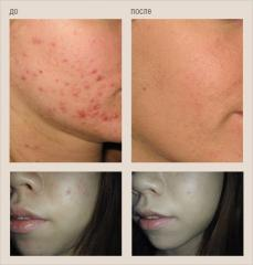 Treatment of an acne illness