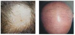 Baldness focal and diffusion