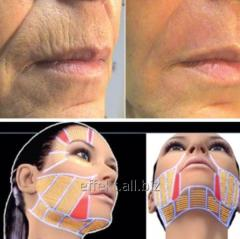 Ultrasonic tightening of facial skin